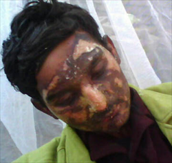Christian Pastor set on fire by Muslims in Pakistan